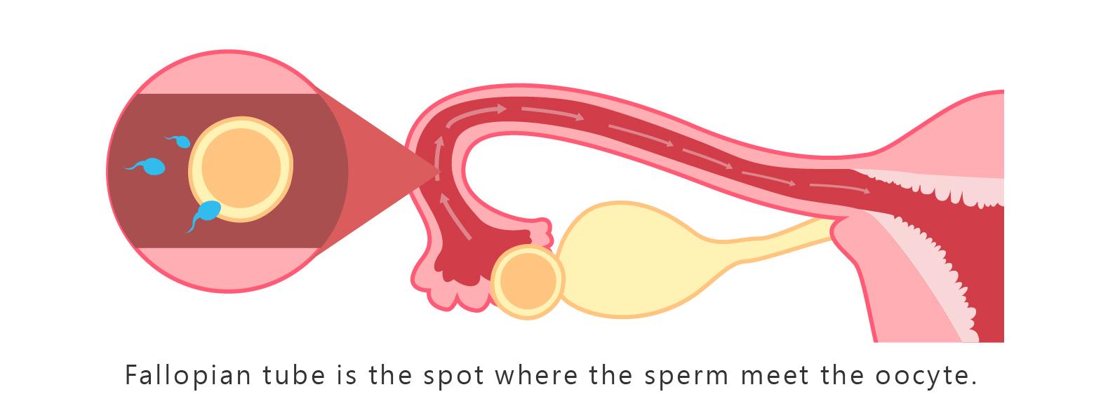 子宮輸卵管攝影