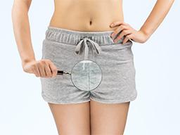 卵巢開刀前的超前部署 認識卵巢畸胎瘤