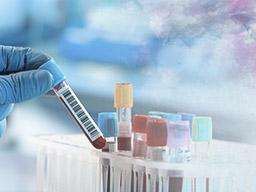 FSH可以真實反應卵巢功能嗎?
