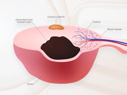 巧克力囊腫會影響試管嬰兒療程嗎?