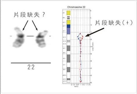 晶片式全基因體定量分析技術 aCGH