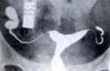 輸卵管遠端阻塞