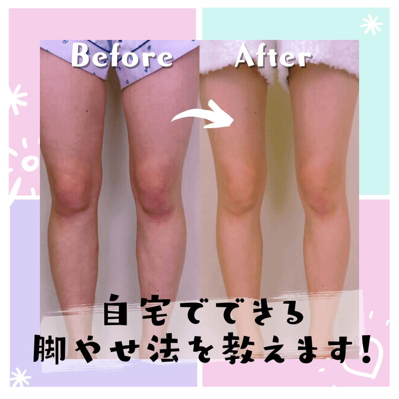 やせ アフター 脚 ビフォー 美脚のプロが教える脚やせ術!脚を細くするための効果的なマッサージとストレッチ方法