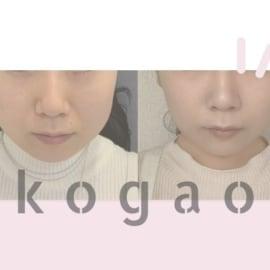 東京美容外科アイキャッチ
