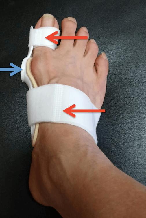 拇指外翻-輔具治療-拇指外翻器