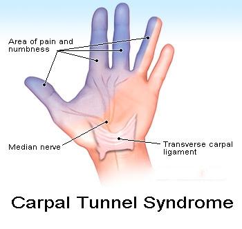 """電腦手? 你中招了嗎! - 有這些症狀嗎?你可能患了 """"腕隧道症候群""""-腕隧道症候群-電腦手"""