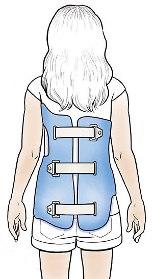 """脊椎怎麼歪一邊? - 中度脊椎側彎的救星 """"側彎背架"""" 的介紹與使用-側彎背架-背架"""