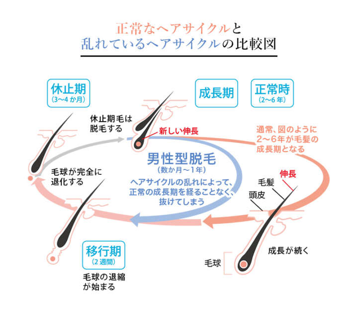 mechanism01_img_01