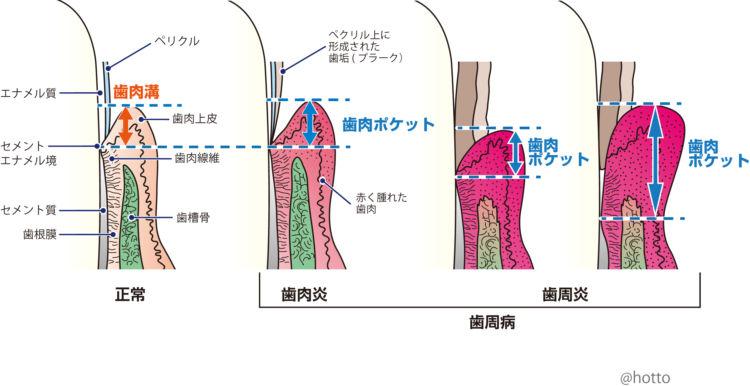 犬の歯周病への進行ステージ