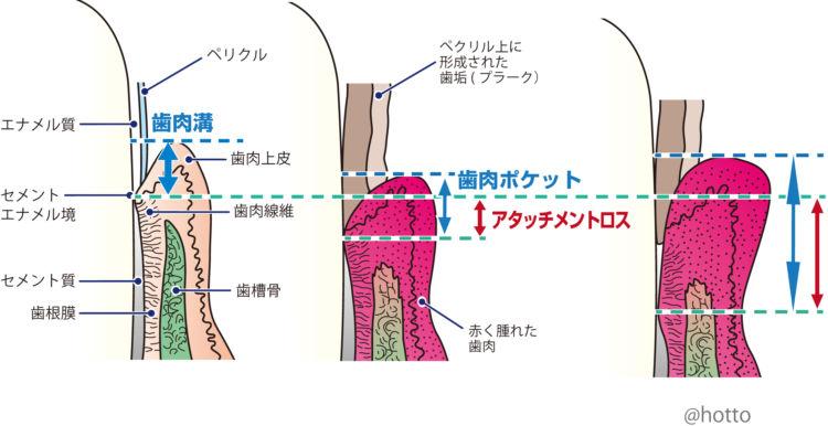歯周病を評価する「アタッチメントロス」