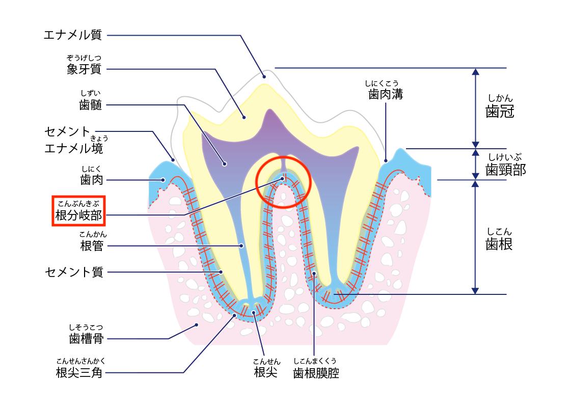 トイ・プードルの歯のトラブル⑤【変形歯】