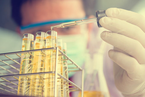「リンパ腫」診断のための検査