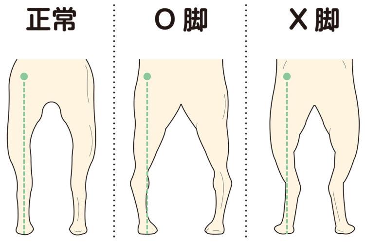犬の後足の配列(アライメント)