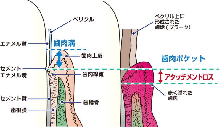 歯周病のステージ分類