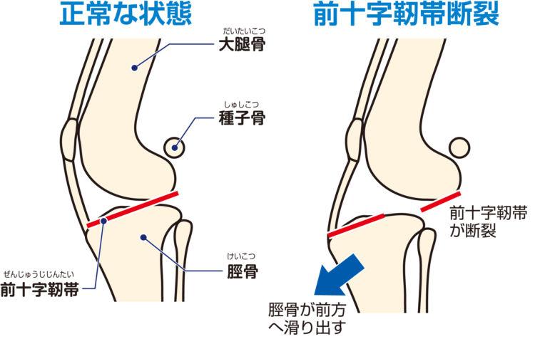 犬の前十字靭帯断裂の状態
