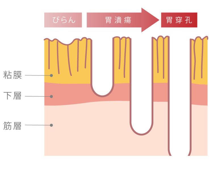 図:胃の炎症の進行