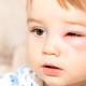 子どもの虫刺され!患部の腫れにステロイド剤を使っても大丈夫?