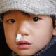 子どもの頻繁な鼻血!原因はアレルギー性鼻炎?専門家が答える関係性