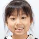 乳歯が抜けない!?子供の歯はいつ生え変わりますか?|専門家の見解