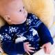 生後3ヶ月の赤ちゃんも水疱瘡に感染する?|専門家の見解