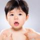 子どもが突然の蕁麻疹!もしかしてアレルギー?|専門家の見解