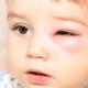 まぶたの乾燥がひどい5歳の息子…自宅で出来る対策は?|専門家の見解