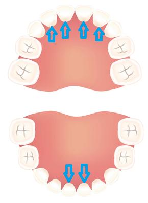 ,歯医者,0歳,歯の生え方