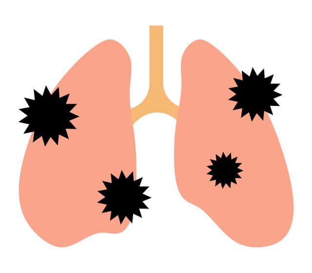 肺の感染症,肺炎,子ども,