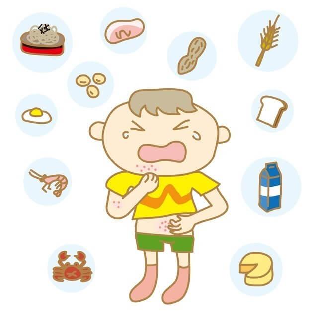 蕁麻疹,発疹,赤ちゃん,