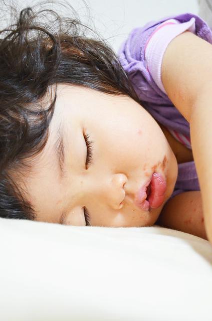 発疹が出た子ども,手足口病,子ども,