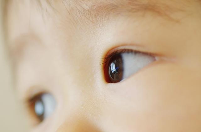 あかちゃんの目,発疹,赤ちゃん,
