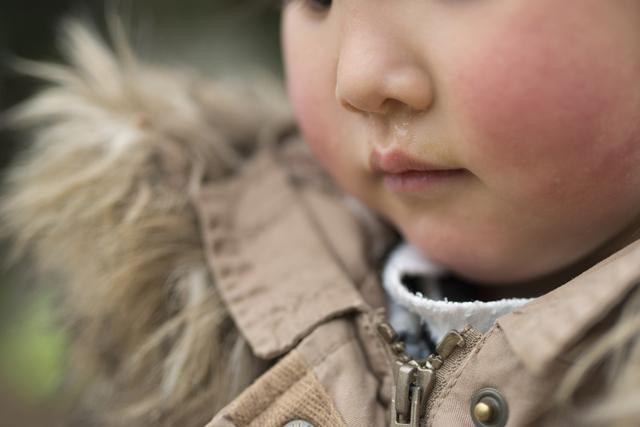 鼻水が出ている子ども,RSウイルス,感染症,