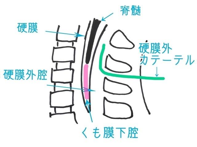 脊髄(せきずい)くも膜下麻酔,無痛,分娩,メリット