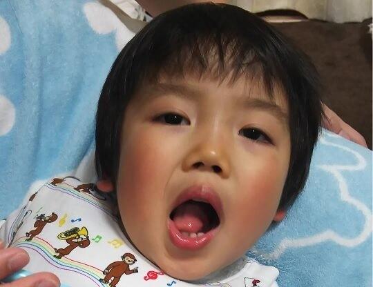 口を大きく開けている子ども,子供,歯みがき,習慣