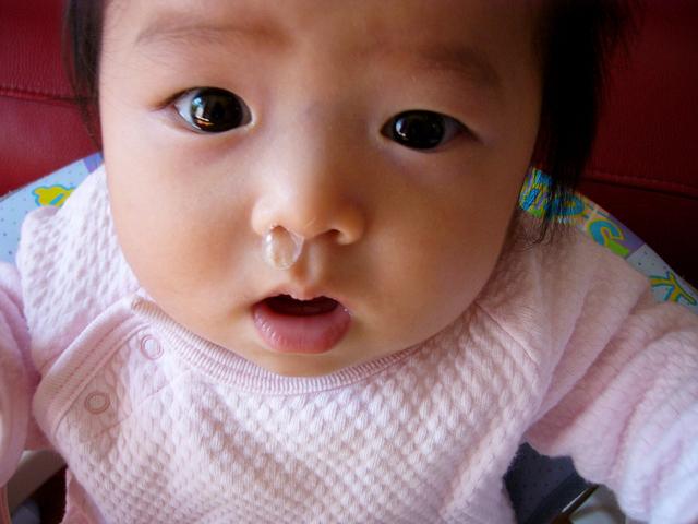 鼻水のでている赤ちゃん,