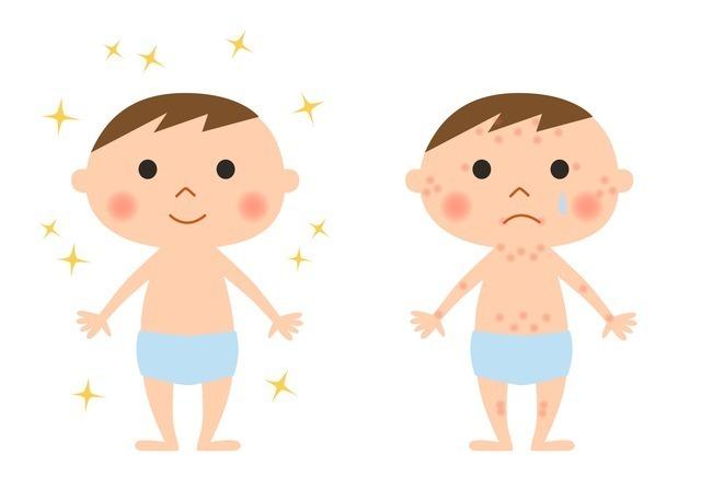 赤ちゃんとアレルギー,離乳食,ミルク,