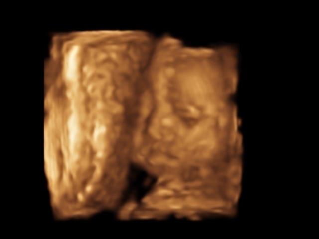 エコー写真 26週4日 26w4d 女の子,妊娠26週,エコー,