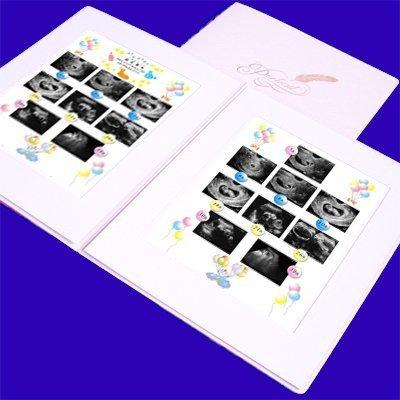 エコー写真はアルバムに保存無印やamazonなど人気のおすすめ10