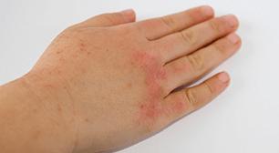 子どもの手のアトピーの写真,アトピー,皮膚炎,治療