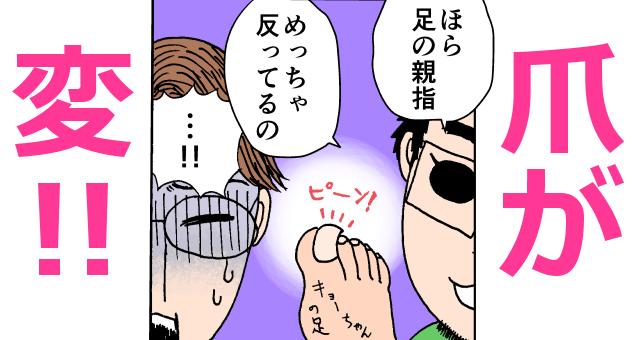子どもの足の親指の爪が変なことに気付く夫婦,育児,マンガ,息子
