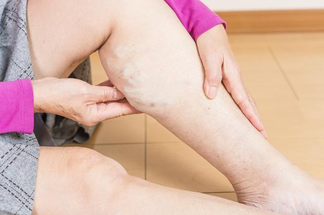 下肢静脈瘤のイメージ,27週,胎児,