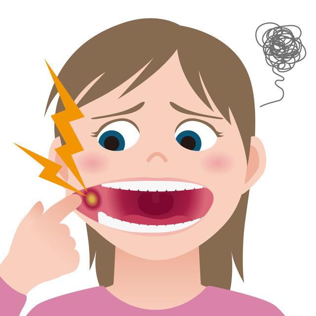 口内炎イメージ,妊娠,口内炎,