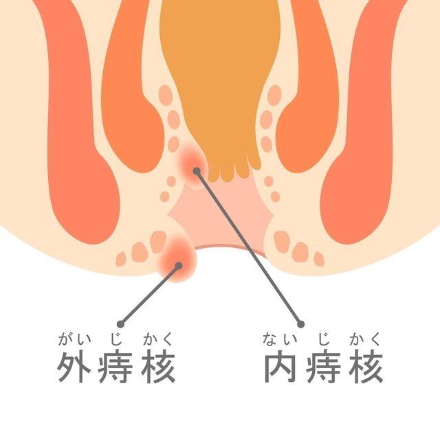 内痔核と外痔核,出産,痔,