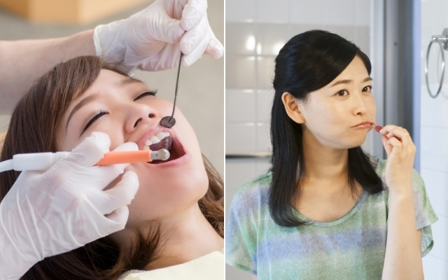 予防歯科,