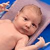 0歳のママからの質問:「生後1カ月、脂漏性湿疹で頭皮がむけてしまう…対処法はありますか?」,