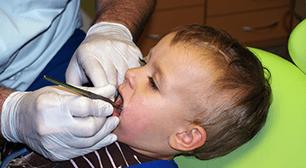 治療を受ける子ども,虫歯,乳歯,