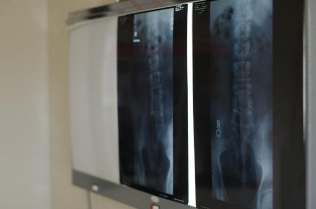 レントゲンの写真,赤ちゃん,股関節脱臼,
