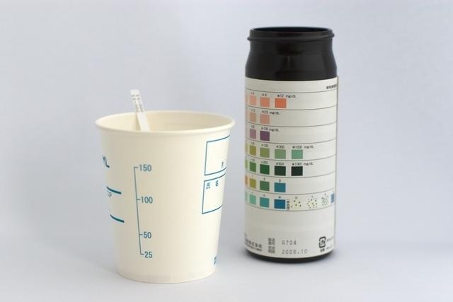 尿検カップと結果,妊娠,尿蛋白,