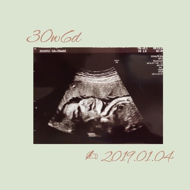 エコー写真 30週6日 30w6d 女の子,妊娠,30週,エコー写真