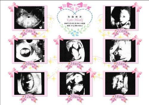 超音波写真アルバム【プリンセス】バリュー「お仕立券」,エコー写真,保存,アルバム